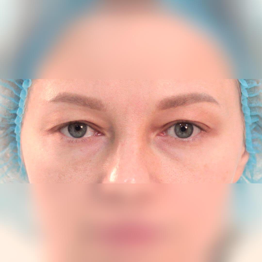 Блефаропластика фото, хирург Бытдаев