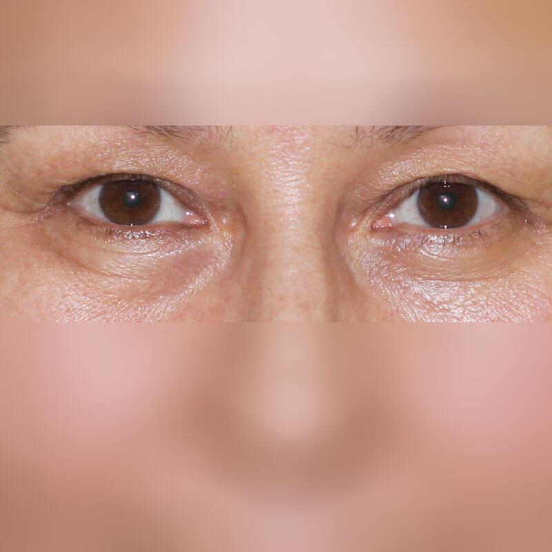 Блефаропластика фото до, хирург Бытдаев