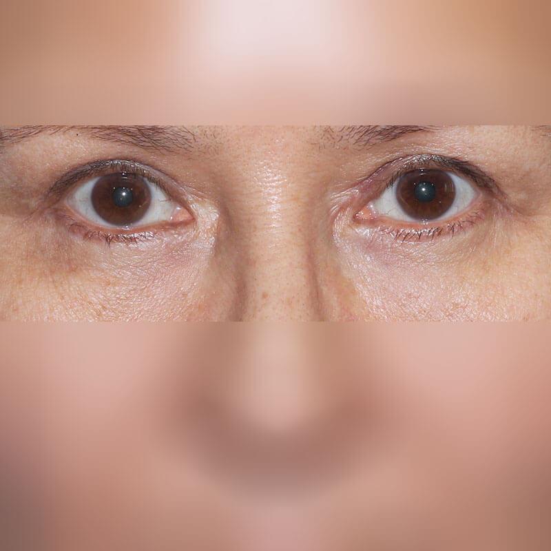Блефаропластика фото после, хирург Бытдаев