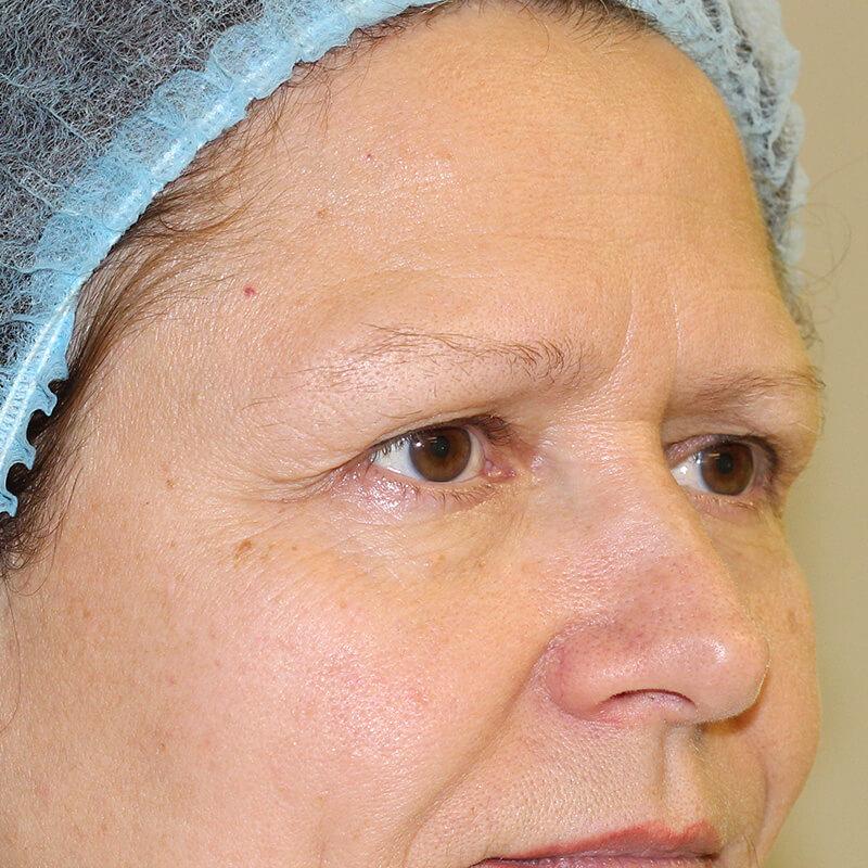 эндоскопическая подтяжка до