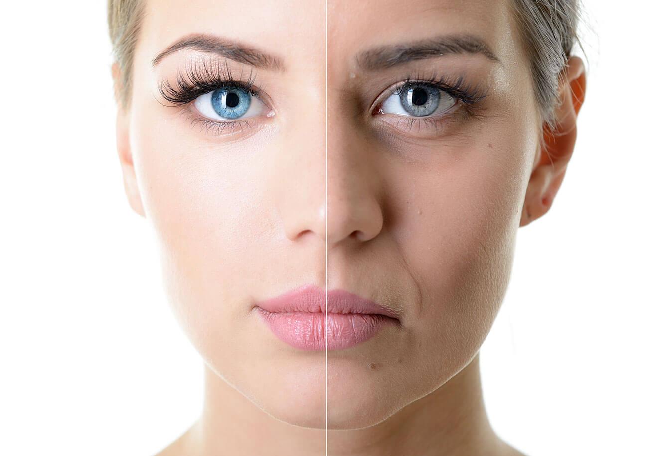 Типы старения кожи и как они влияют на результаты фейслифтинга