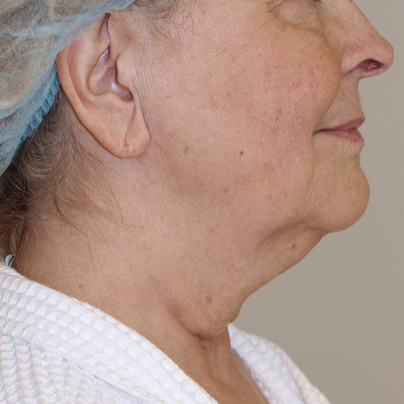 Фейслифтинг фото до - хирург Бытдаев