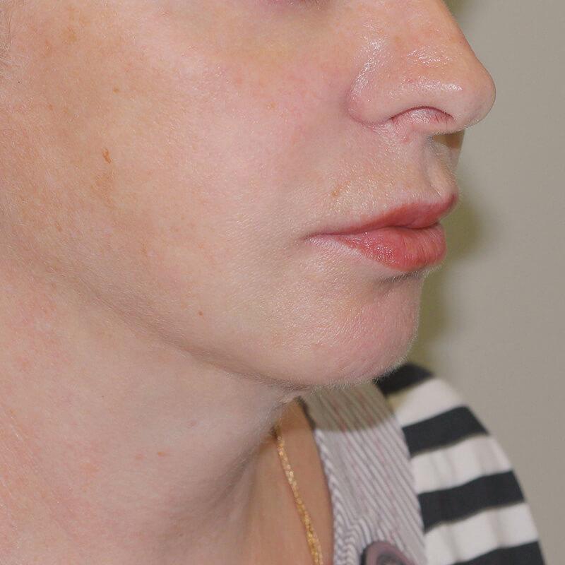 Фейслифтинг фото после - хирург Бытдаев