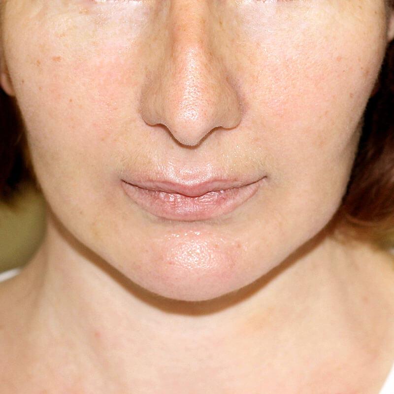 пластика лица фото после