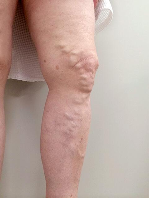 Лечение вен на ногах до