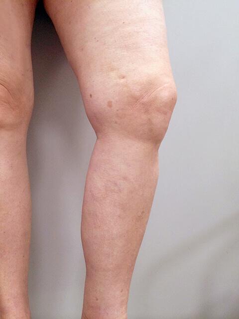 Лечение вен на ногах результат после