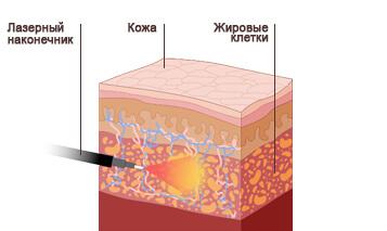 лазерная липосакция