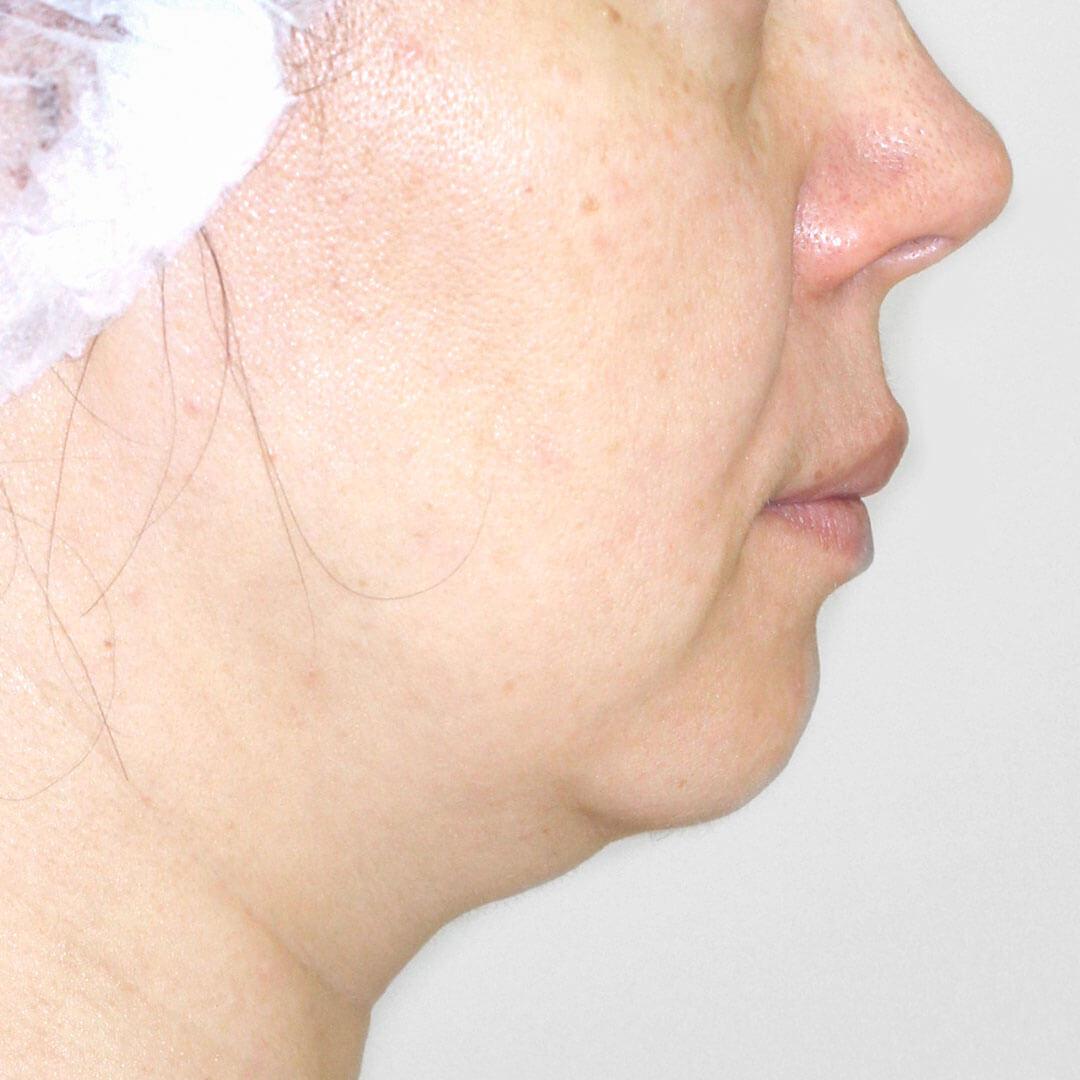 Лазерная подтяжка лица до - хирург Бытдаев
