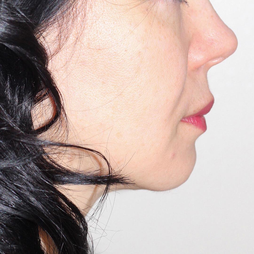 Лазерная подтяжка лица после - хирург Бытдаев