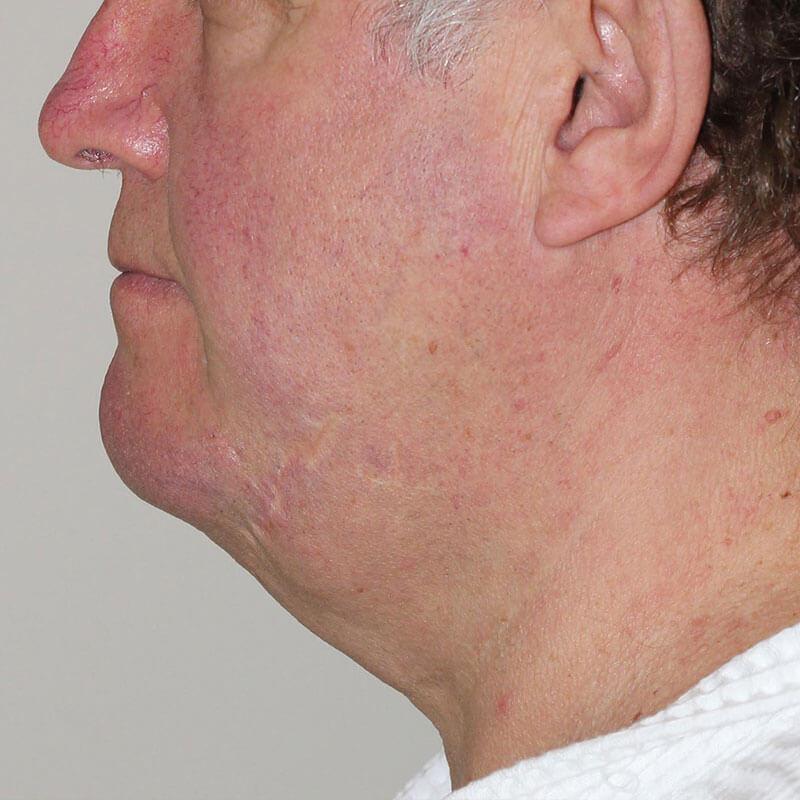 Лазерная липосакция подбородка у мужчины до