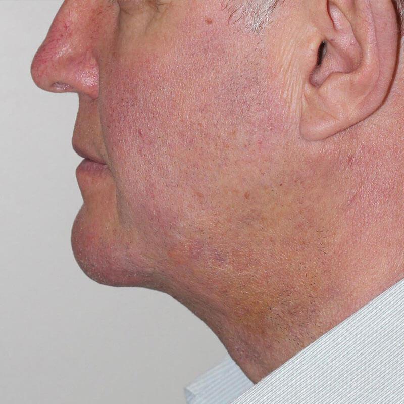 Лазерная липосакция подбородка у мужчины после