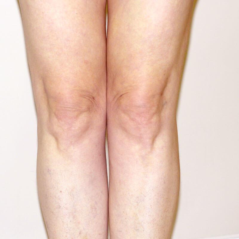 Лазерная липосакция коленей после