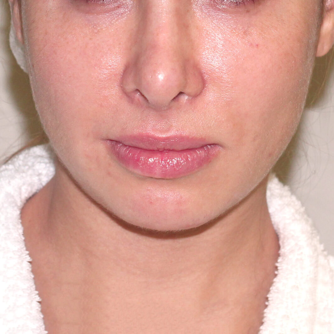Липосакция щек и лица хирург Бытдаев