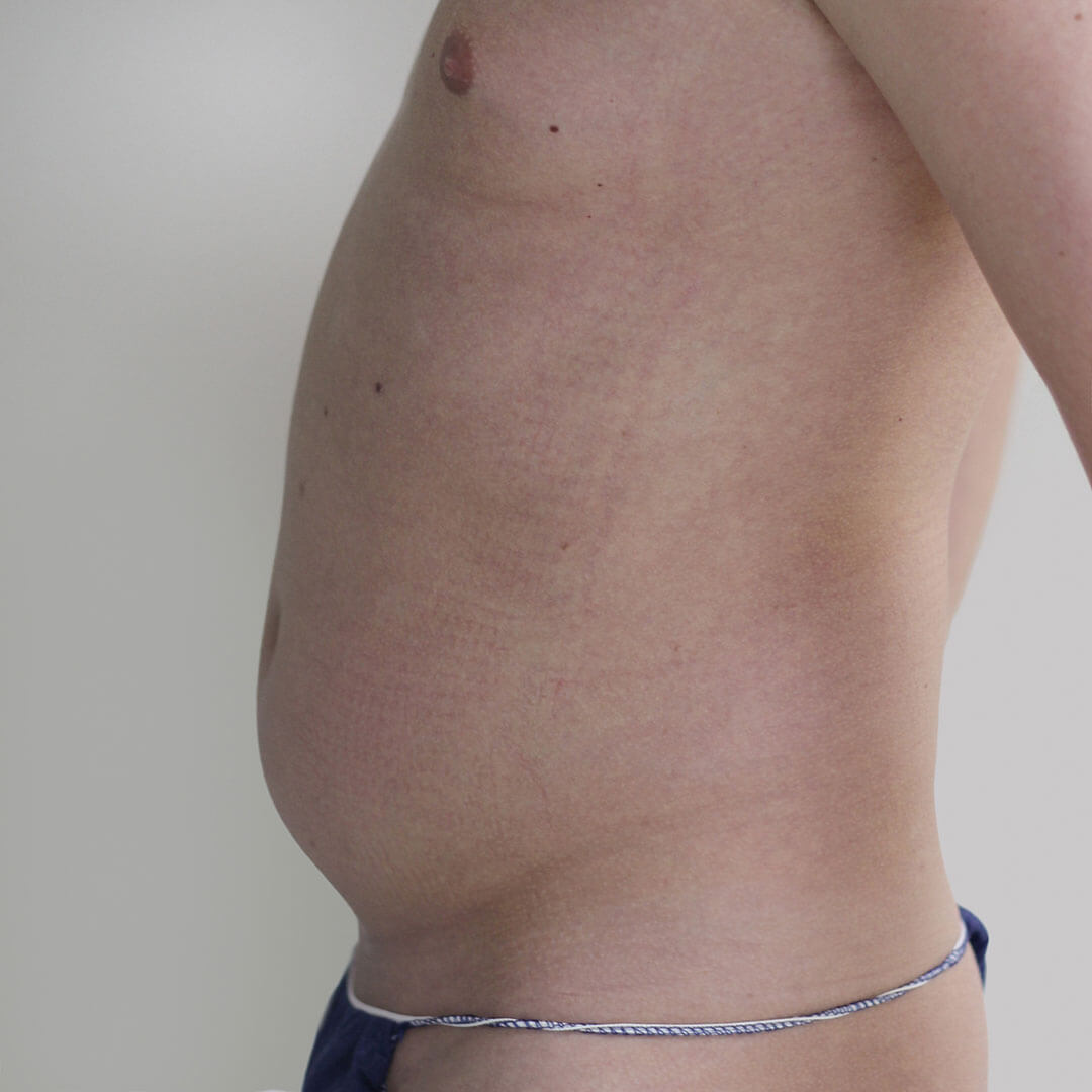 Липосакция живота у мужчин фото до, хирург Бытдаев