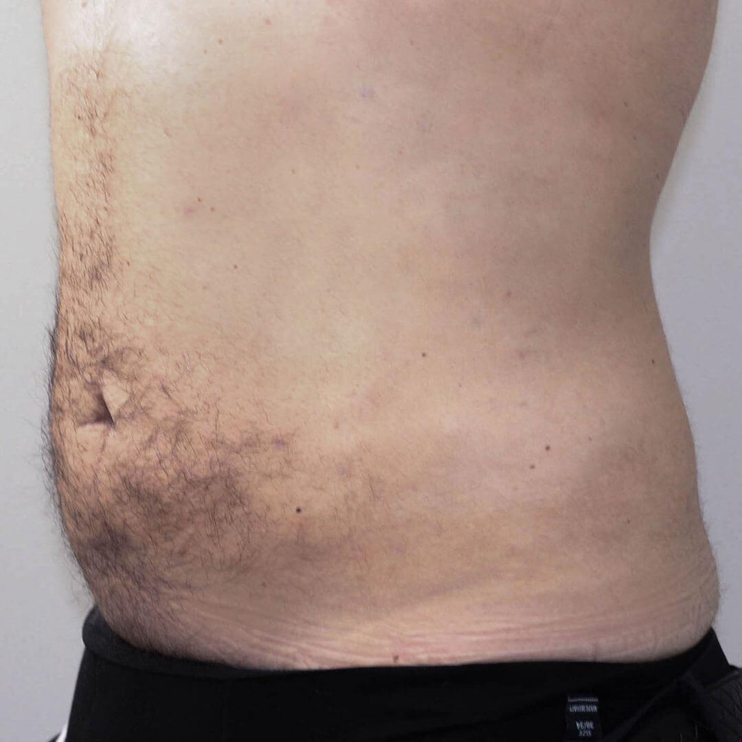 Липосакция живота у мужчин фото после, хирург Бытдаев