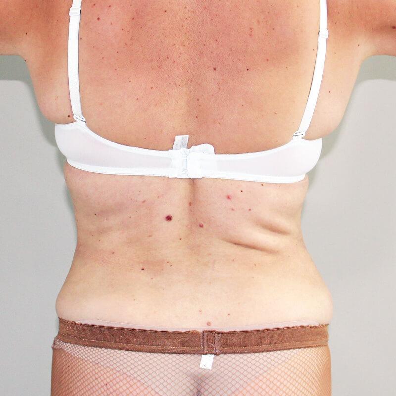Лазерная липосакция спины после