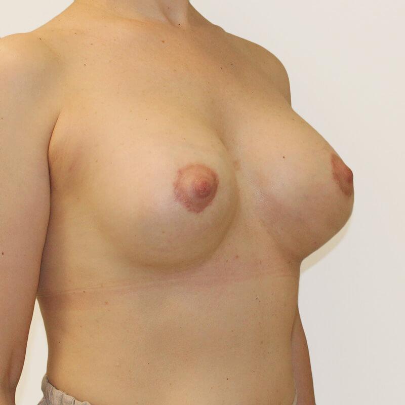 Подтяжка груди после
