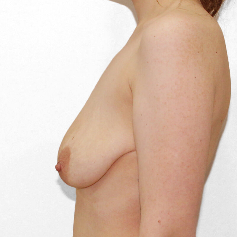 Подтяжка груди до
