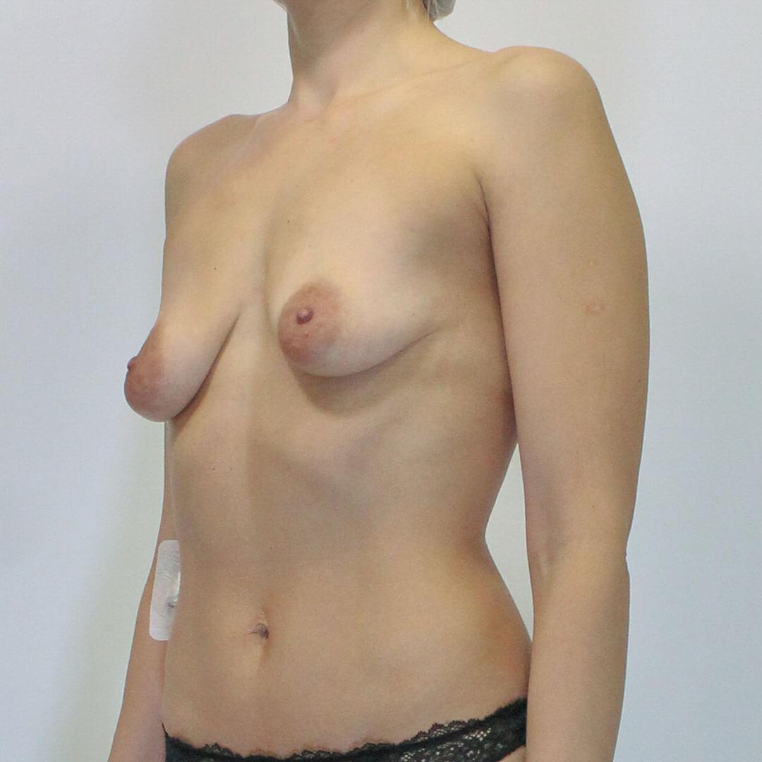 Подтяжка груди - Хирург Фирсов, фото до
