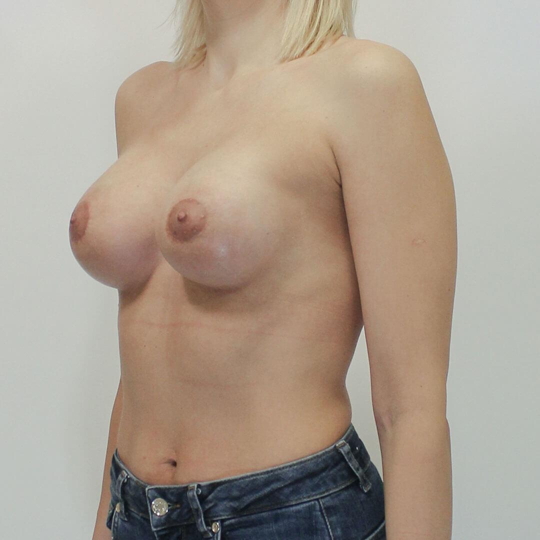 Подтяжка груди - Хирург Фирсов, фото после