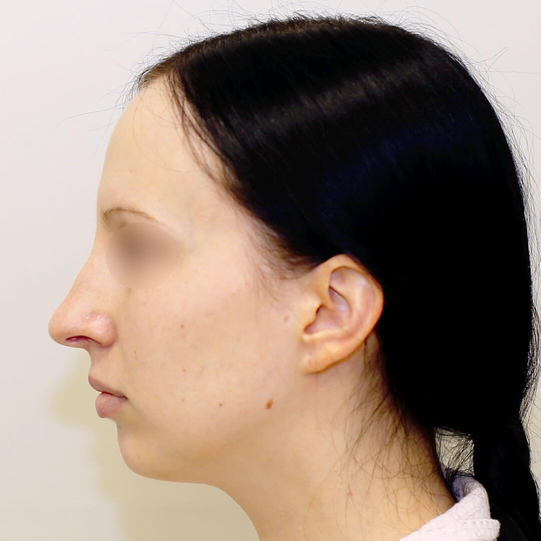 Ринопластика фото до