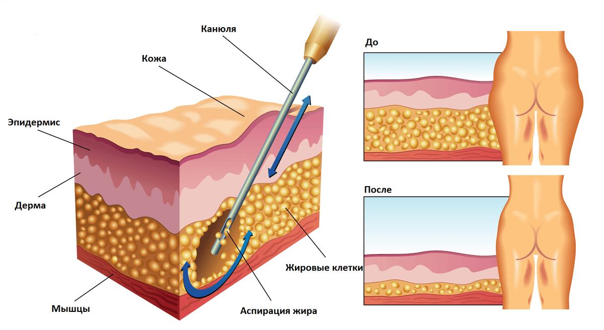Лазерные технологии в клинике косметологии и пластической хирургии
