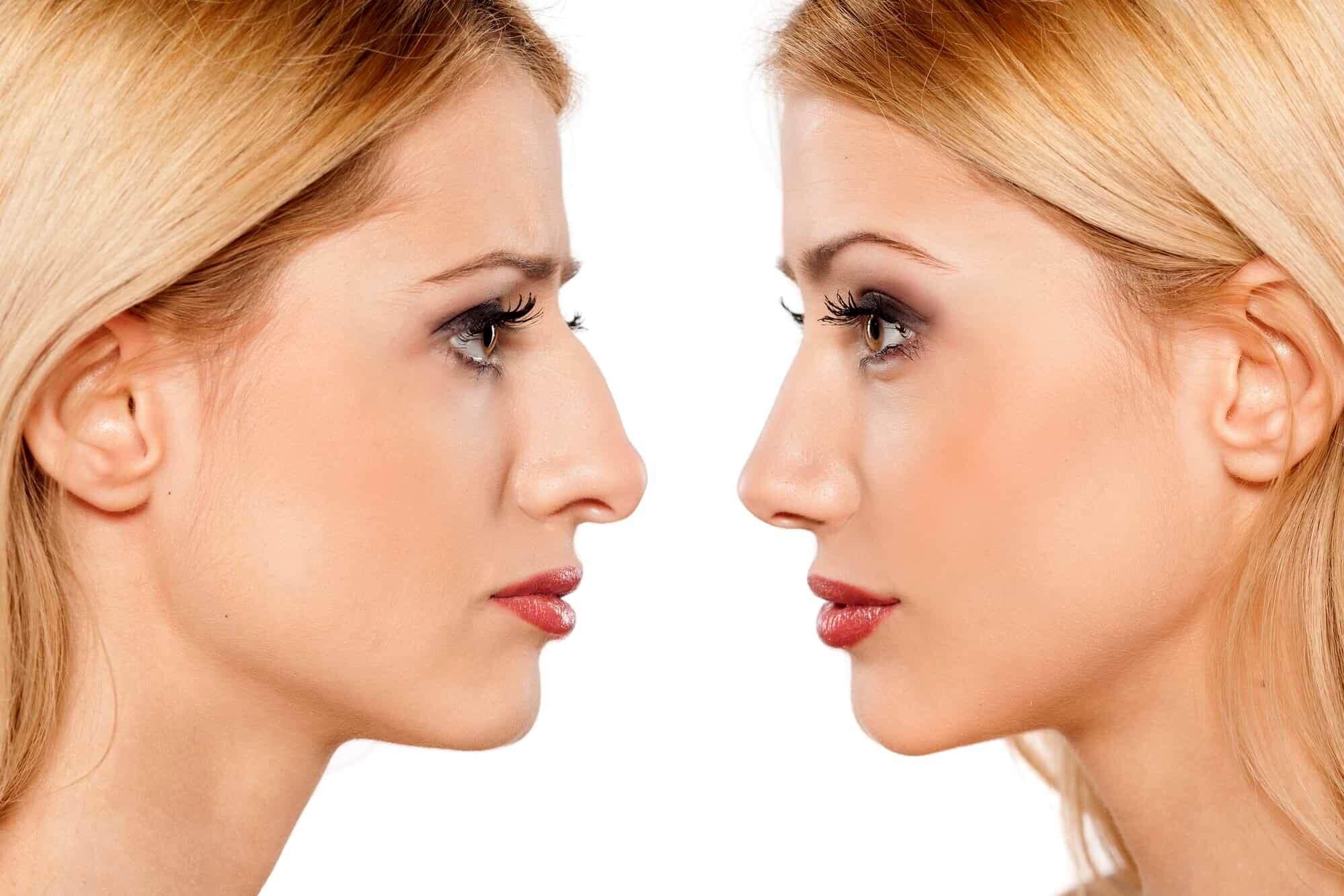 Пластическая операция носа