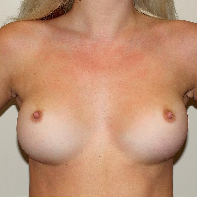 Увеличение груди после