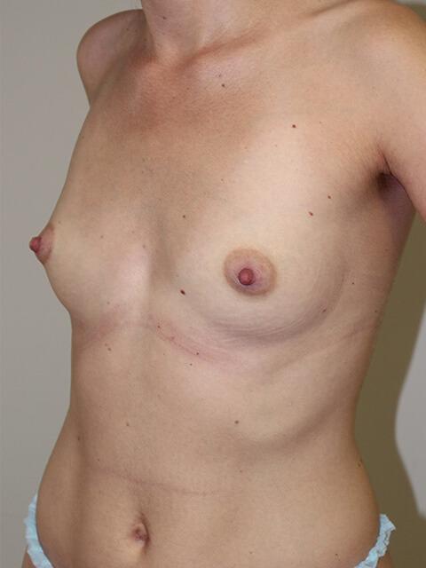 Увеличение груди до