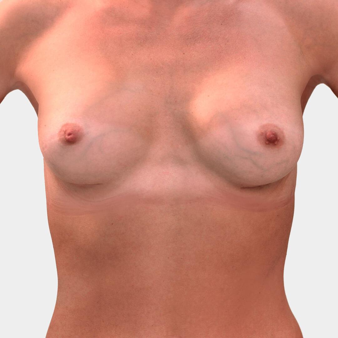 Увеличение груди Бытдаев З.М. после