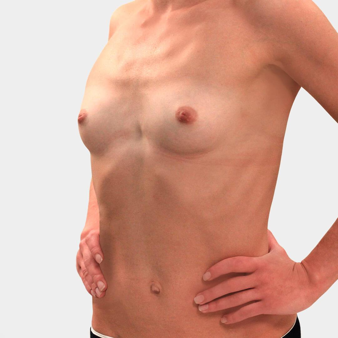 Увеличение груди Бытдаев З.М. до