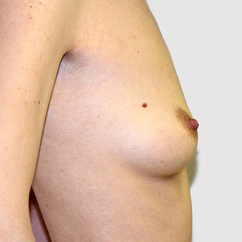 Маммопластика до