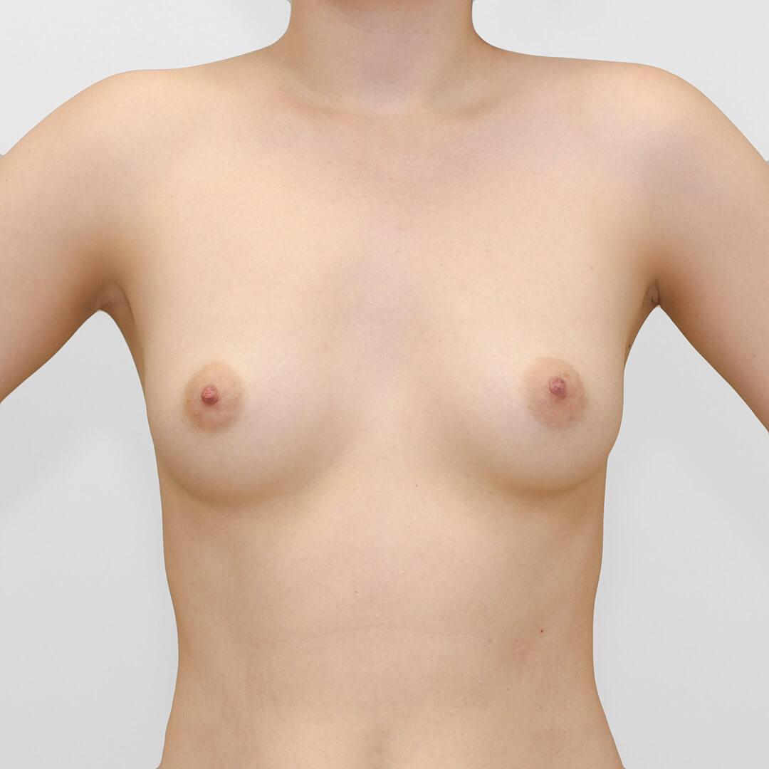 Увеличение груди фото до, хирург Бытдаев