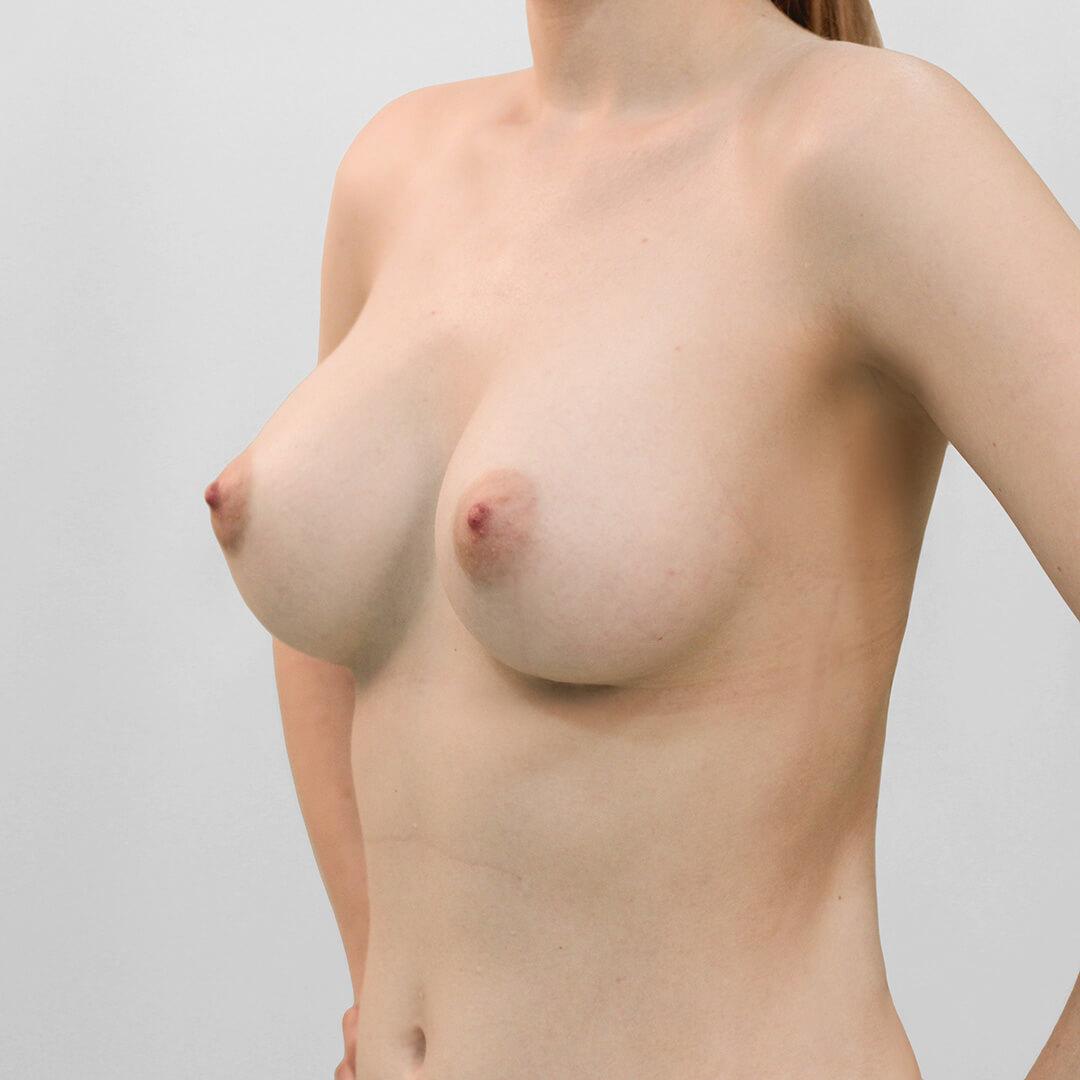 Увеличение груди фото после, хирург Бытдаев