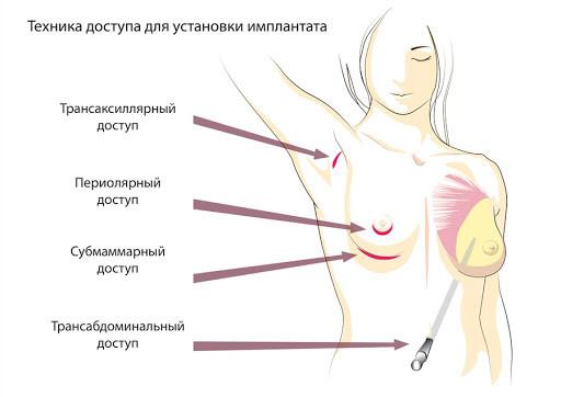Способы доступа при установке имплантата